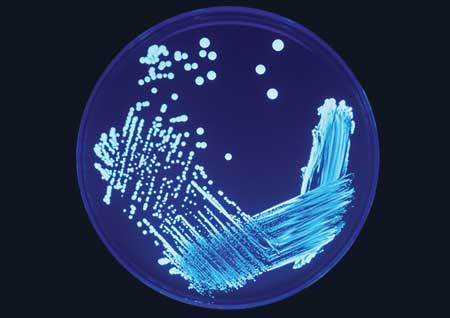 waterbone pathogens